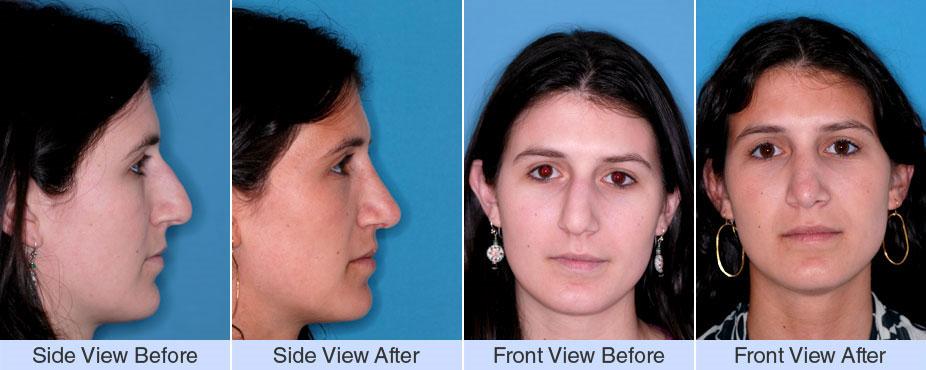 Nose Surgery NYC Photos | NY Otolaryngology Group
