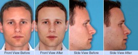 Asymmetric over projected nose