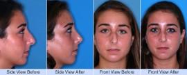 Asymmetric nose, bump