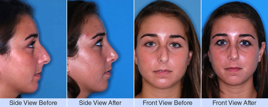 Nose Surgery Photos | Cosmetic Surgery NYC