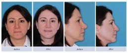 Revision rhinoplasty and nasal valve repair for scooped out bridge and overly rotated tip