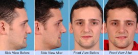 Asymmetric, droopy, bump nose