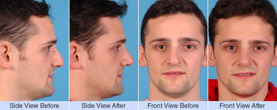 asymmetric droopy bump nose asymmetric wide tip asymmetric droopy nose