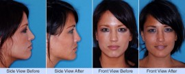 Deviated, nasal valve collapse