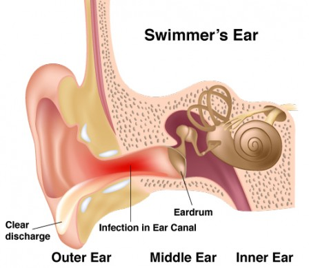 Swimmers-ear diagram