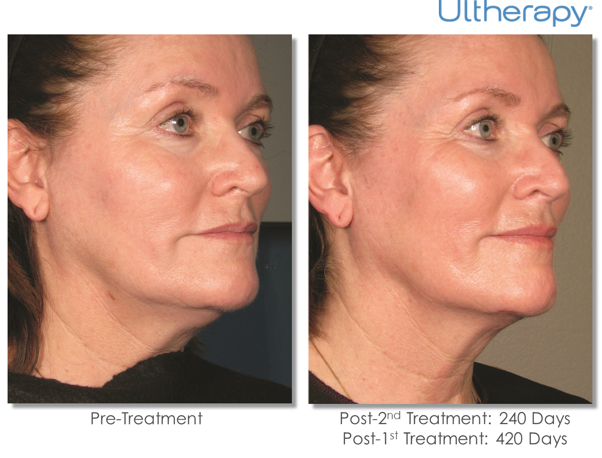 before & after Ultherapy photo