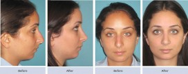 before and after rhinolplasty and nasal valve collapse