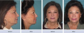 facelift photo