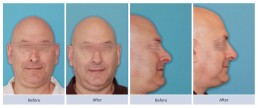 Revision rhinoplasty and nasal valve repair on twisted nose with a droopy tip