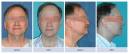 Submentoplasty - Neck Skin Laxity
